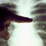IALOMIŢA: Focar de TBC la Şcoala nr. 6 din Slobozia! Toţi elevii vor f...